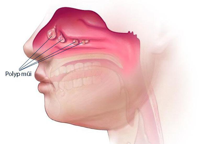 Polyp mũi của người bệnh phát triển gây tắc nghẽn đường thoát lưu dịch