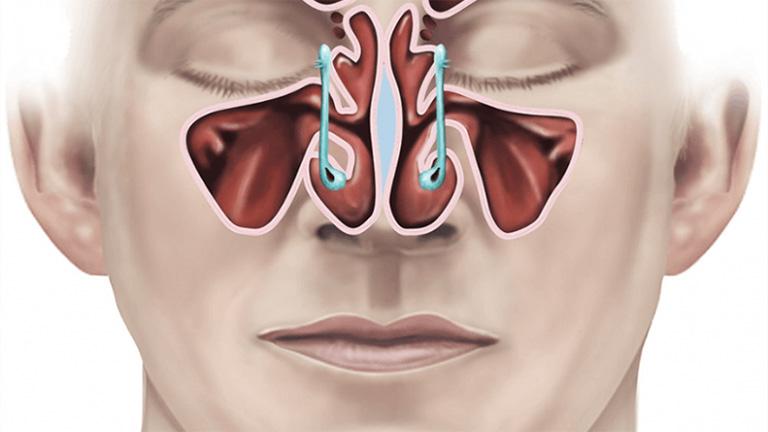 Viêm xoang hàm mãn tính được xếp vào những bệnh nguy hiểm