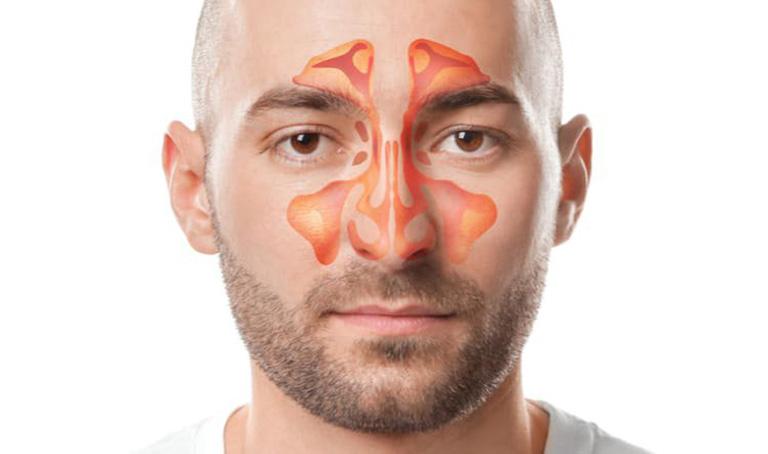 Xoang hàm có cấu tạo gồm các hốc xoang ở quanh mắt hoặc hai bên má