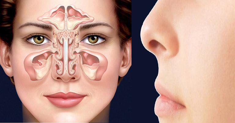 Viêm xoang hàm trên là tình trạng xoang hàm, trán hoặc xoang bướm bị viêm ở hốc xoang