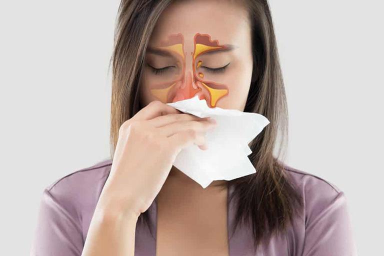 Người bệnh bị nhiễm trùng đường hô hấp có nguy cơ bị viêm xoang ca