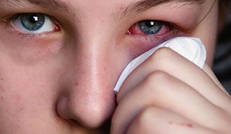Biến chứng có thể gặp phải là viêm nề ổ mắt