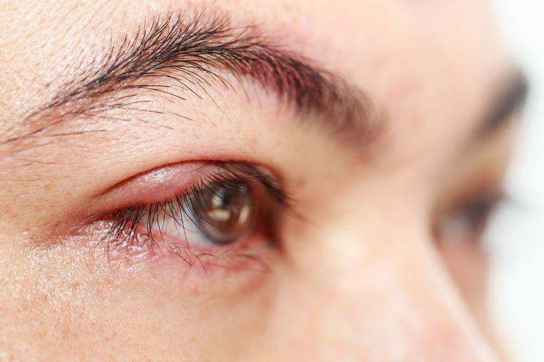 Mí mắt sưng to, đau nhức gây ra nhiều khó chịu cho người bệnh