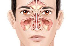 Bệnh viêm xoang gây đau răng