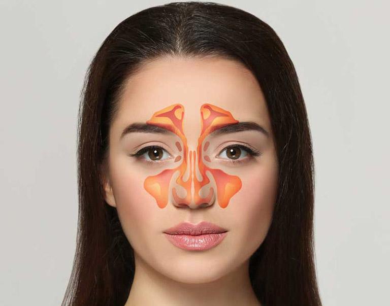 Hệ thống xoang trong cơ thể gồm xoang sàng, xoang trán, xoang bướm và xoang hàm