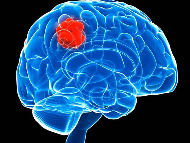 Viêm xoang hàm trái gây ra biến chứng về não