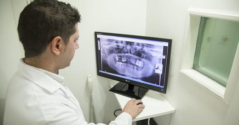 Bác sĩ chỉ định chụp X-quang để chẩn đoán qua hình ảnh