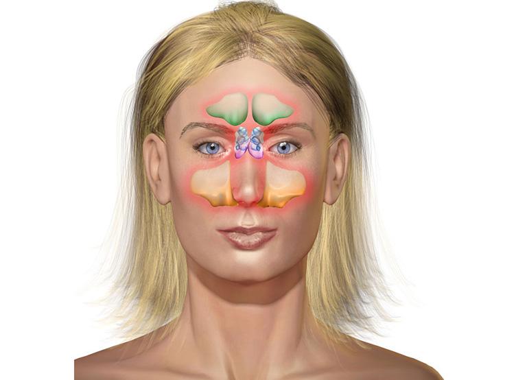 Xoang trán có cấu tạo gồm 2 khoang nhỏ chứa không khí có vị trí nằm ngay trên ổ mắt