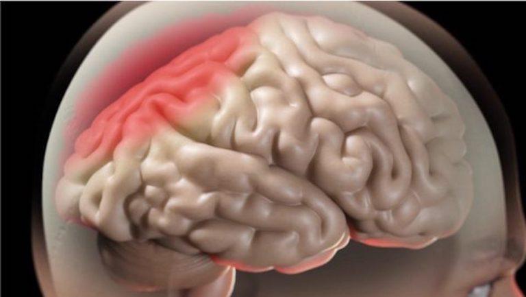 Khi xoang viêm nhiễm, vi khuẩn có thể theo các dây thần kinh lan sang não bộ