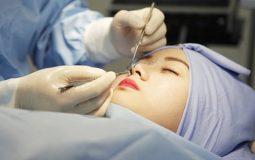 Bị viêm xoang có nâng mũi được không là thắc mắc của nhiều chị em khi muốn làm đẹp