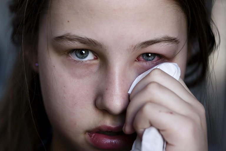 Việc kiểm soát bệnh không tốt sẽ khiến cho bệnh nhân dễ gặp phải biến chứng nguy hiểm