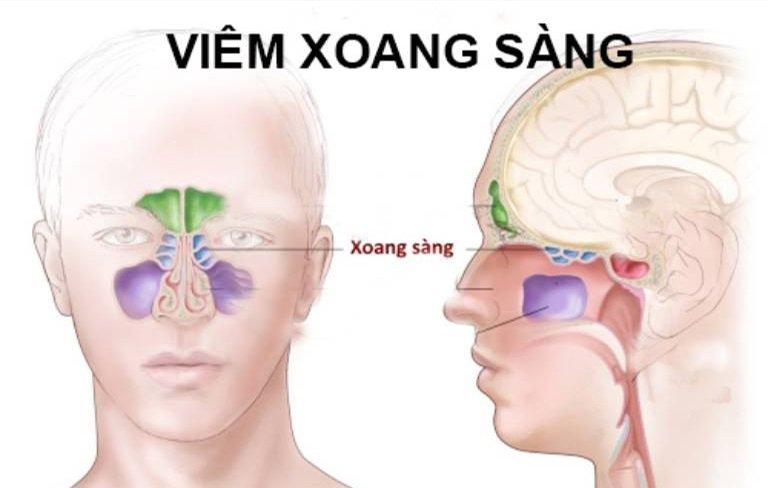 Viêm xoang sàng hiểu đơn giản là một thể của bệnh viêm xoang, xảy ra ở vùng xoang sàng