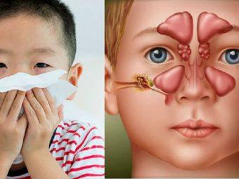 Điều trị viêm xoang cấp ở trẻ em cần được thực hiện sớm để bảo vệ sức khoẻ hệ hô hấp