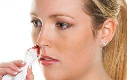 Viêm xoang chảy máu mũi là hiện tượng có thể gặp khi bạn bị mắc chứng viêm xoang