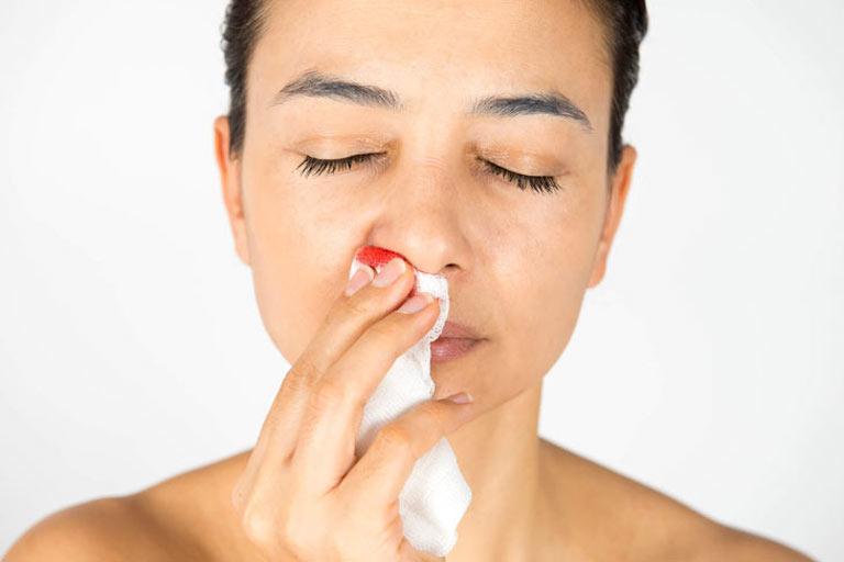 Viêm xoang xì mũi ra máu cảnh báo nhiều dấu hiệu xấu cho sức khỏe