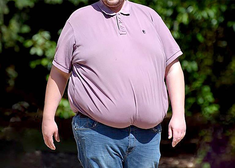 Người béo phì dễ dối mặt với những nguy cơ nguy hiểm từ bệnh Covid - 19