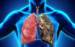 Các bệnh nền về phổi có thể gây nguy hiểm cho người mắc bệnh Covid - 19