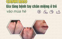 Cảnh báo gia tăng bệnh tay chân miệng cho trẻ em trong mùa hè