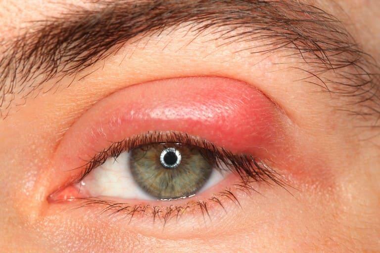 Áp xe mí mắt là một trong những biến chứng nguy hiểm của viêm xoang cấp