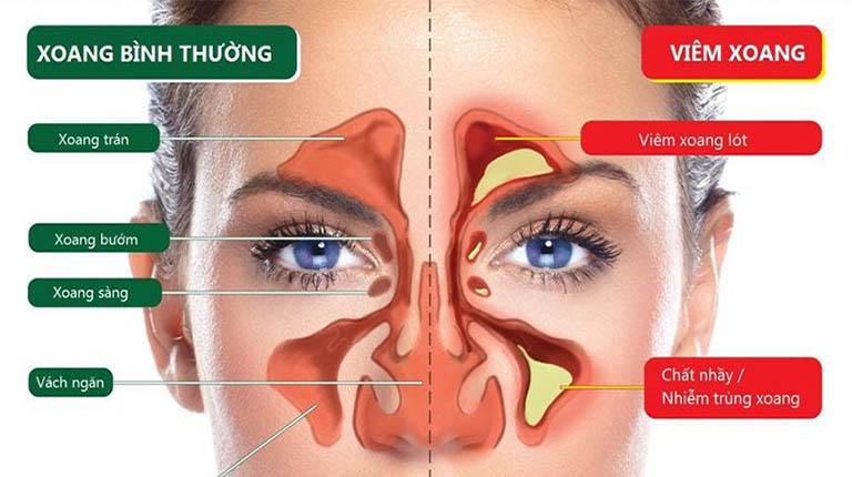 Xoang sàng nằm ở vị trí giữa hốc mắt và sống mũi