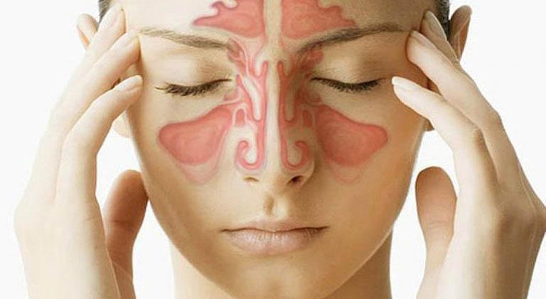 Viêm xoang trán gây đau đầu khó chịu ở người bệnh