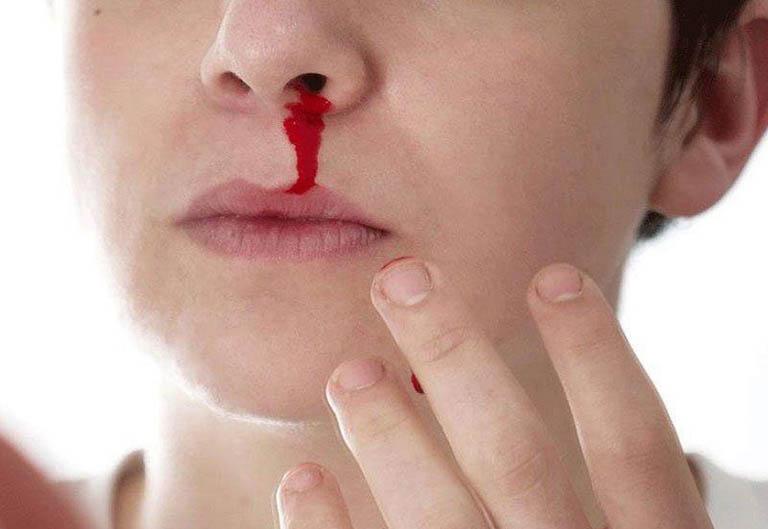 Viêm xoang cấp gây chảy máu mũi khiến người bệnh lo lắng