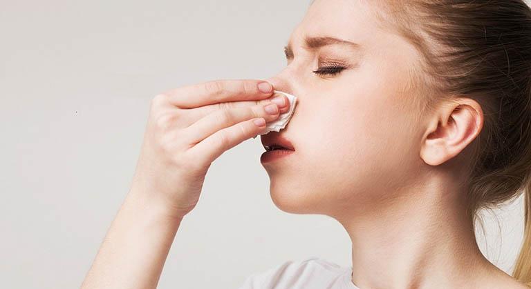 Khi bị viêm xoang cấp gây chảy máu mũi cần cầm máu đúng cách
